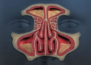 Diseased Sinuses